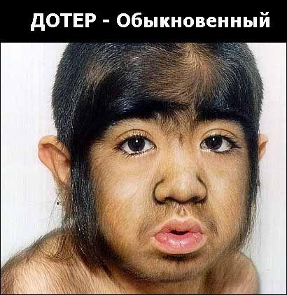 генетические уродства пизды фото